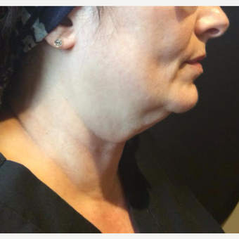 55-64 year old woman treated with Kybella before 3669967