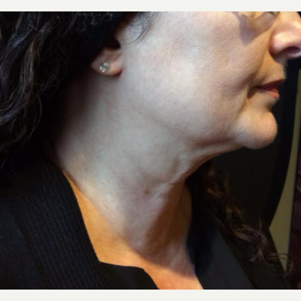 55-64 year old woman treated with Kybella after 3669967