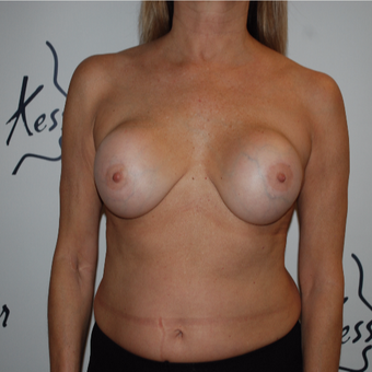 45-54 year old woman treated with Breast Implant Revision before 3578075