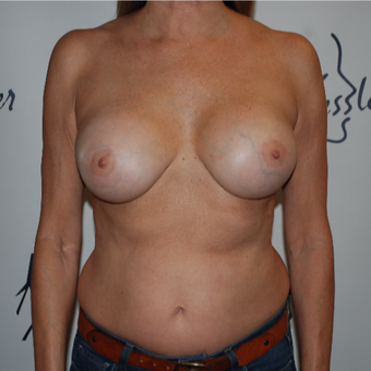 45-54 year old woman treated with Breast Implant Revision after 3578075