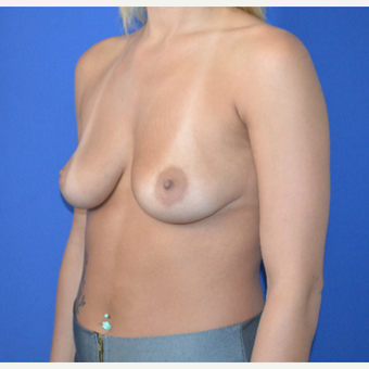25-34 year old woman treated with Breast Augmentation before 3148380