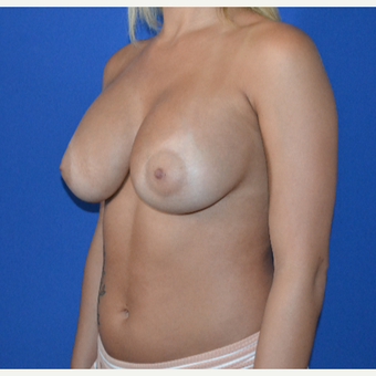 25-34 year old woman treated with Breast Augmentation after 3148380
