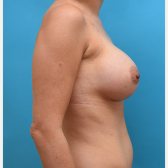 25-34 year old woman treated with Breast Augmentation after 3042170