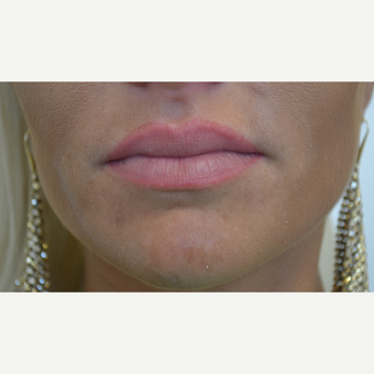 25-34 year old woman treated with Lip Augmentation before 3489900
