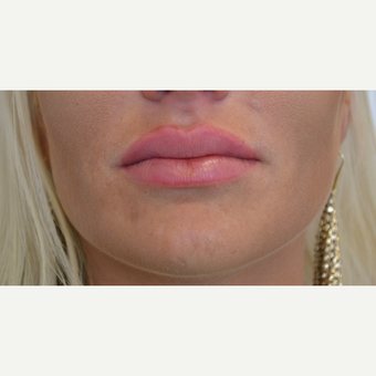 25-34 year old woman treated with Lip Augmentation after 3489900