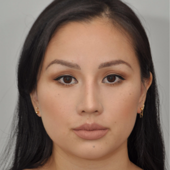 25-34 year old woman treated with Asian Rhinoplasty after 3524670