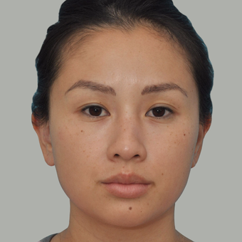 25-34 year old woman treated with Asian Rhinoplasty before 3524670