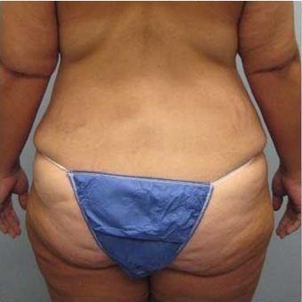 37 year old woman treated with Body Lift before 3680217