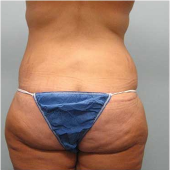 37 year old woman treated with Body Lift after 3680217