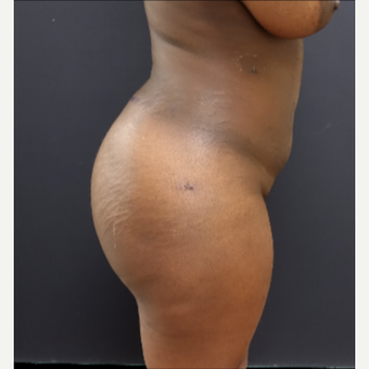 25-34 year old woman treated with Liposculpture after 3363906