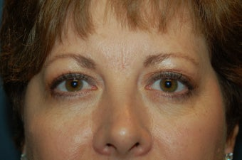 Upper Eyelids after 928588
