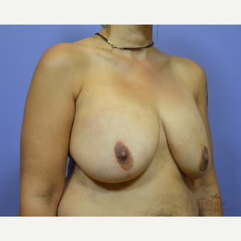 45-54 year old woman treated with Breast Implant Revision before 3421754