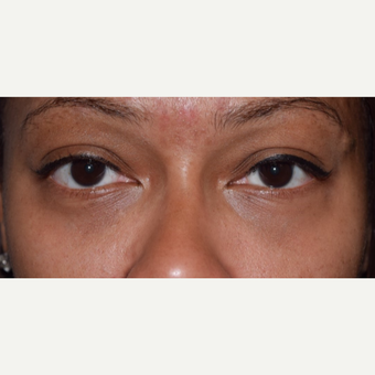 35-44 year old woman treated with Eye Bags & Drak Circle Under Eyes Treatment after 3345647