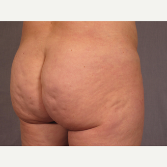 35-44 year old woman treated with Brazilian Butt Lift before 3308472