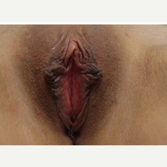 25-34 year old woman treated with Labiaplasty before 3187448