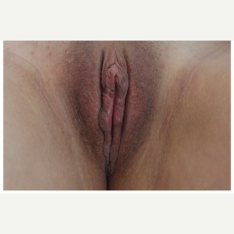 25-34 year old woman treated with Labiaplasty after 3187448
