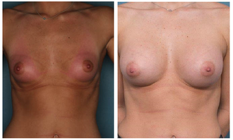 18-24 year old woman treated with Breast Augmentation before 3002065