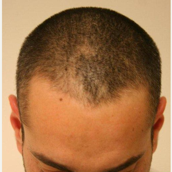 35-44 year old man treated with FUE Hair Transplant before 2784260