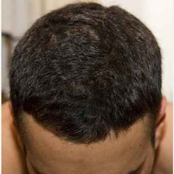 35-44 year old man treated with FUE Hair Transplant after 2784260