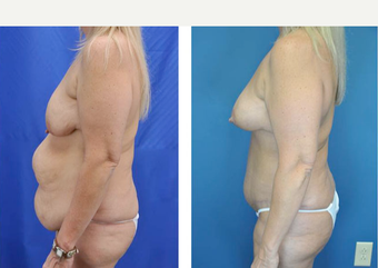 45-54 year old woman treated with Tummy Tuck before 3776430