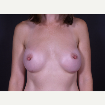 25-34 year old woman treated with Breast Augmentation after 3101151