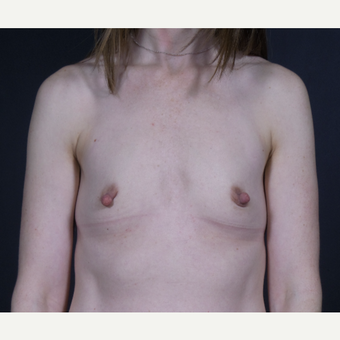 25-34 year old woman treated with Breast Augmentation before 3101151