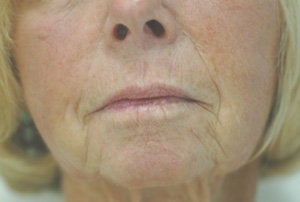 Juvederm for Smile Lines Before and After Pictures before 204767