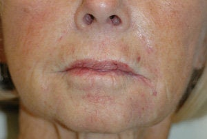 Juvederm for Smile Lines Before and After Pictures after 204767
