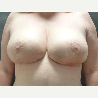 45-54 year old woman treated with Breast Reduction after 3833144