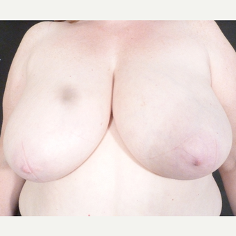 45-54 year old woman treated with Breast Reduction before 3833144