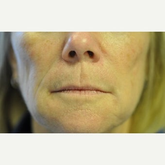55-64 year old woman treated with Juvederm after 2565178