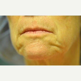 55-64 year old woman treated with Juvederm before 2565178