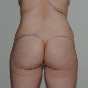 45 year old woman treated with Brazilian Butt Lift before 1662088