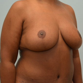 Enhanced Breast lift with auto-augmentation on 5'7 mother of 3 following a 100 pound weight loss. after 3071380