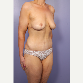 25-34 year old woman treated with Body Lift after 2852224