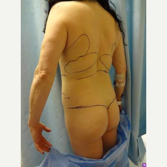 25-34 year old woman treated with Brazilian Butt Lift before 3721196