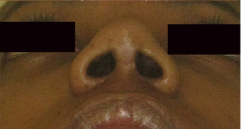 increased tip length on basal view - non caucasian rhinoplasty