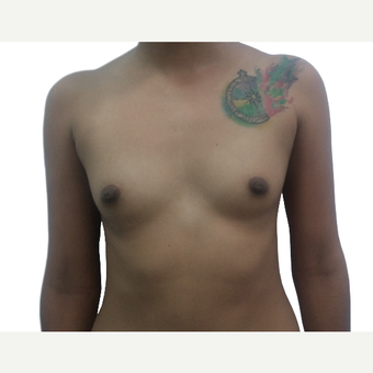 18-24 year old woman treated with Breast Augmentation before 3321569