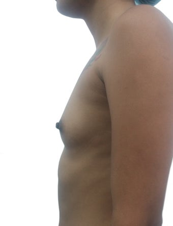18-24 year old woman treated with Breast Augmentation 3321569