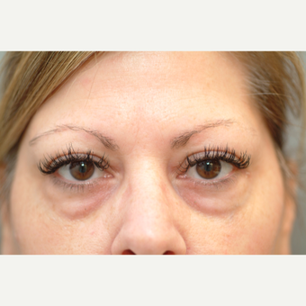 45-54 year old woman treated with Eyelid Surgery before 3523467