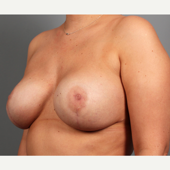 25-34 year old woman with BRCA+ gene treated with prophylactic Breast Reconstruction after 3344841