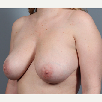 25-34 year old woman with BRCA+ gene treated with prophylactic Breast Reconstruction before 3344841