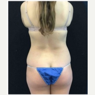 18-24 year old woman treated with CoolSculpting before 3181798