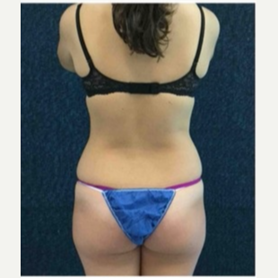 18-24 year old woman treated with CoolSculpting after 3181798