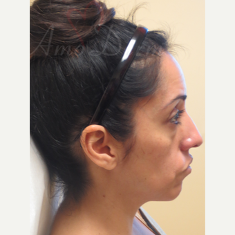 35-44 year old woman treated with Voluma in the cheeks before 3381423