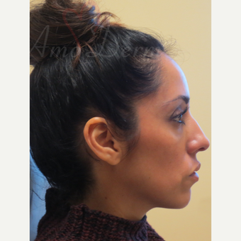 35-44 year old woman treated with Voluma in the cheeks after 3381423