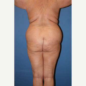 45-54 year old woman treated with Liposuction before 3506335