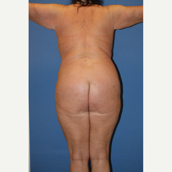 45-54 year old woman treated with Liposuction after 3506335