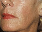 Sculptra after 992549
