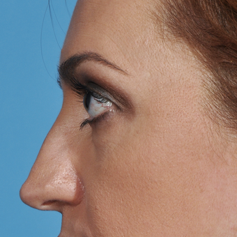 35-44 year old woman treated with Rhinoplasty before 3038287